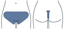 Бикини глубокое лазерная эпиляция, удалить волосы в зоне бикини, избавится от вросших волос, лазерная эпиляция бикини, ЛазерЛеди, удалить волосы навсегда, лазерная эпиляция бикини экстра