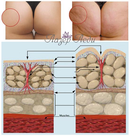 Лечение целлюлита кожи